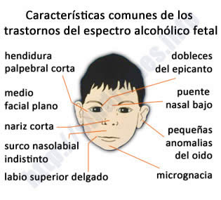 La codificación del alcoholismo it 21