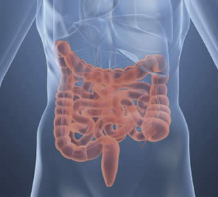 Síndrome Intestino irritable
